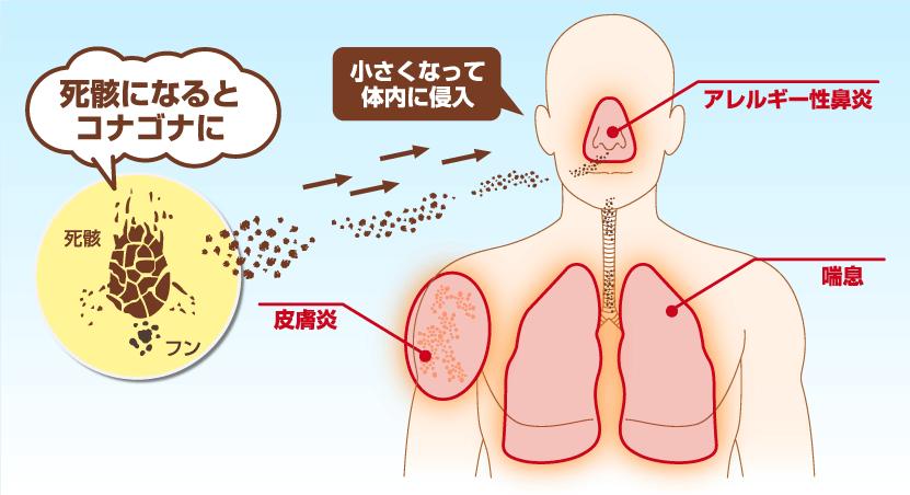 ダニアレルギーのメカニズム