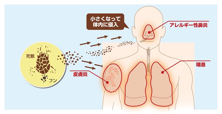 ダニアレルゲンとアレルギー性疾患
